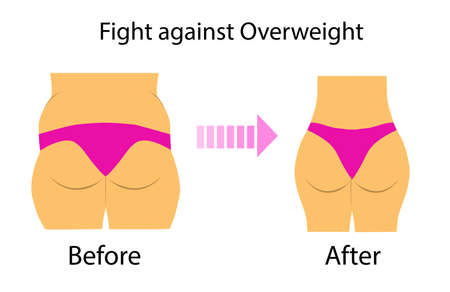 Vector illustration with two types of figure, overweight problem