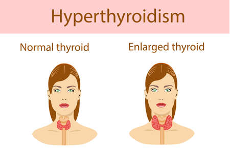 Vector illustration. Woman with enlarged hyperthyroid gland. Hyperthyroidism symbol. Patient with a goiter. Medical concept. Anatomy of people. Vector illustration.