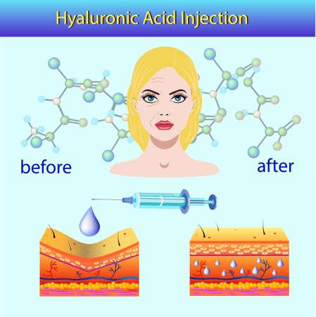 Vector illustration with cosmetic filler or Dermal fillers on light background