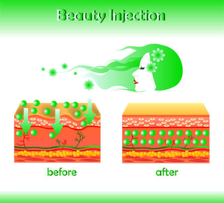 Vector illustration with cosmetic filler or Hyaluronic acid on light background