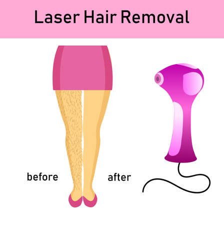 laser hair removal, legs of girl and a laser apparatus, before after effectvector illustration Archivio Fotografico - 110685230