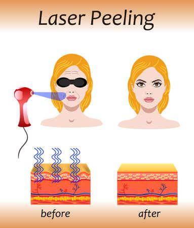 Laser peeling, vector illustration with before after effect Ilustração