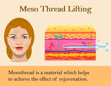 Vector illustration of meso threads lifting isolated Zdjęcie Seryjne