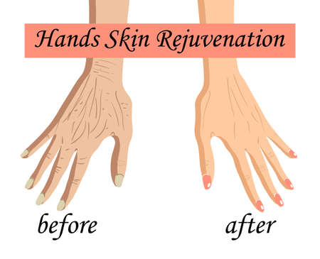 Hand skin rejuvenation, before after vector illustration isolated on the white background