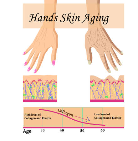 Hands skin aging, infographic vector illustration with a chart