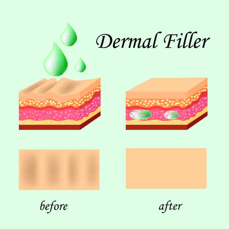 Vector illustration with cosmetic filler or Dermal fillers on green background