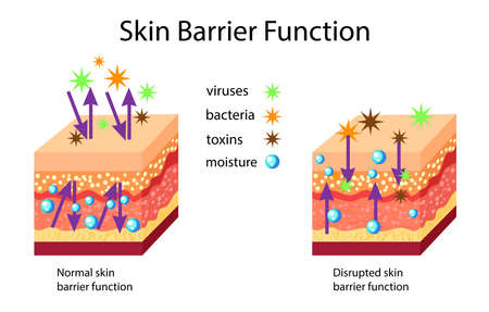 Skin barrier function, normal and disrupted, vector illustration isolated