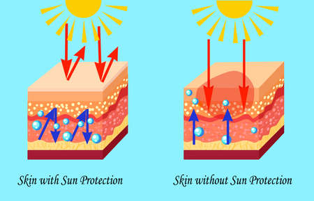 Two types of skin with and without sun protection, sunburn, vector illustration