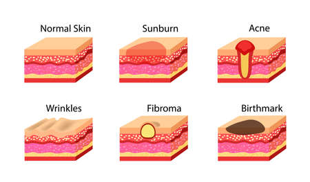 Skin problems icons set. Vector stock illustration. Illustration