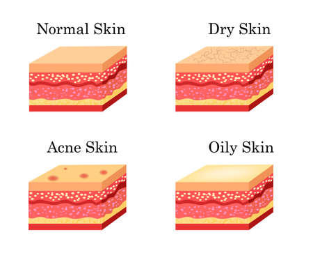 Skin types icons set. Vector stock illustration