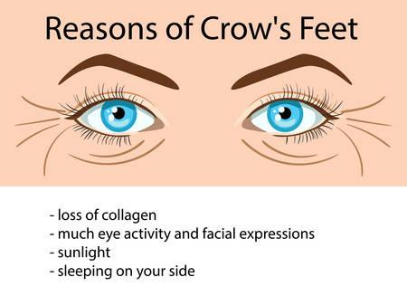 Reasons od Crows feet wrinkles, vector illustration