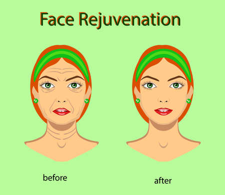 Face rejuvenation, vector illustration with before after effect isolated Vector Illustration