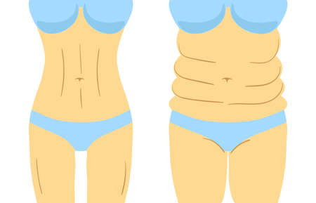 Liposuction before and after effect, fitness or diet. Vector illustration of woman figure isolated Ilustração