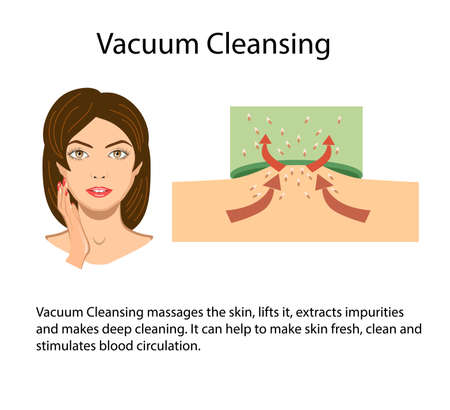 Scheme of Vacuum suction process, vector illustration