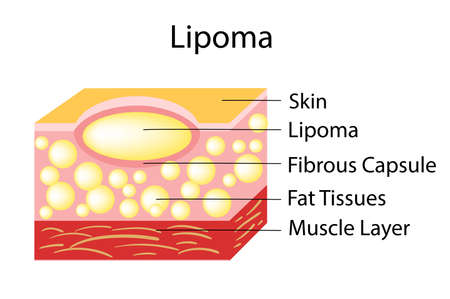 Lipoma are adipose tumors located in the subcutaneous tissues. Illustration