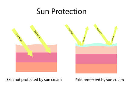 Skin compare between skin with broad-spectrum sunscreen protect both UVA and UVB and and normal sun screen which cannot protect UVA