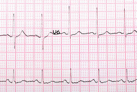 printout: EKG printout under  monochromatic source