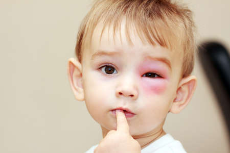 little boy - dangerous stings from wasps near the eye photo