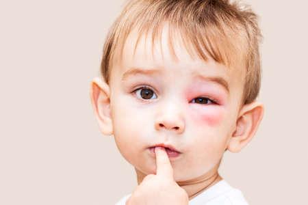 Little Boy - Gevaarlijke Stings Van Wespen nabij The Eye - Geïsoleerde Afbeelding Stockfoto