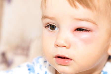 red eyes: Little Boy - Dangerous Stings From Wasps Near The Eye Stock Photo