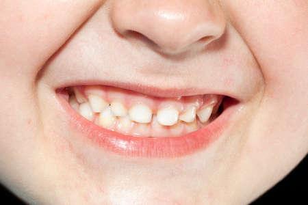 child teeth close up