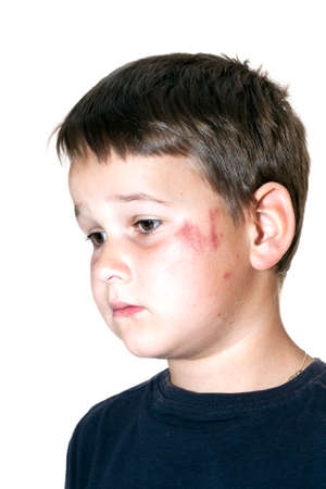 sad boy with a scraped face