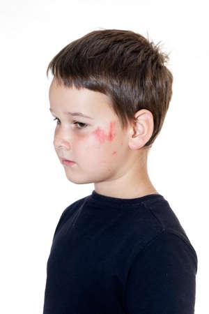 tearful: sad boy with a scraped face