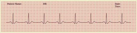 realistic cardiogram vector