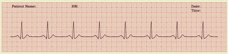 homeopath: realistic cardiogram vector