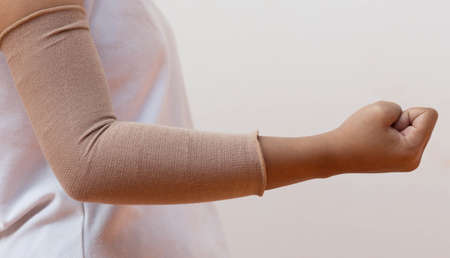 cast: arm wrapped to elbow injuries. Stock Photo
