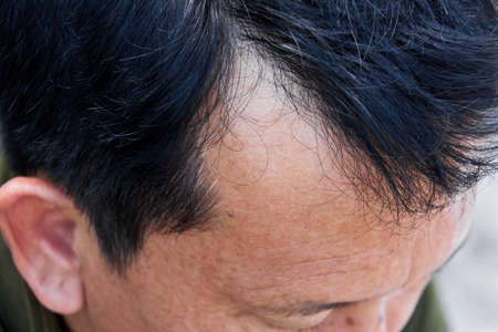 Human alopecia or hair loss problem and grizzly , shot from side view Reklamní fotografie - 24000296