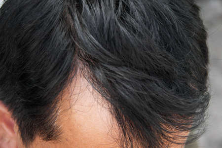 Human alopecia or hair loss problem and grizzly , shot from side view Reklamní fotografie - 24000297