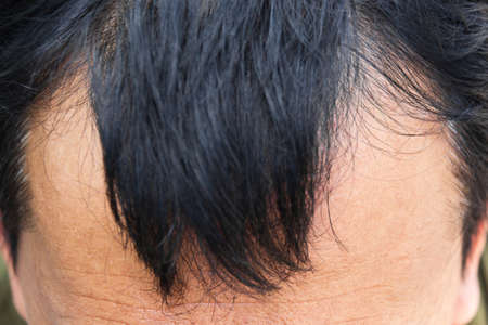 pelade: Human alopecia or hair loss problem and grizzly , shot from side view