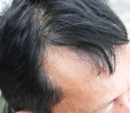 Human alopecia or hair loss problem and grizzly , shot from side view