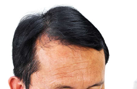 pelade: Human alopecia or hair loss problem and grizzly , shot from front view Stock Photo