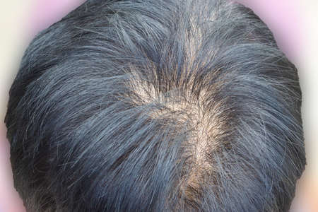 Human alopecia or hair loss problem and grizzly , shot from top view photo