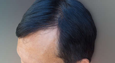 Human alopecia or hair loss problem and grizzly, shot from side view Stock Photo