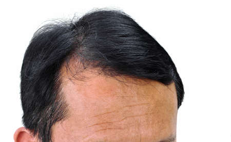 Human alopecia or hair loss problem and grizzly, shot from front view