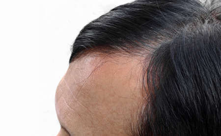 pelade: Human alopecia or hair loss problem and grizzly, shot from side view Stock Photo