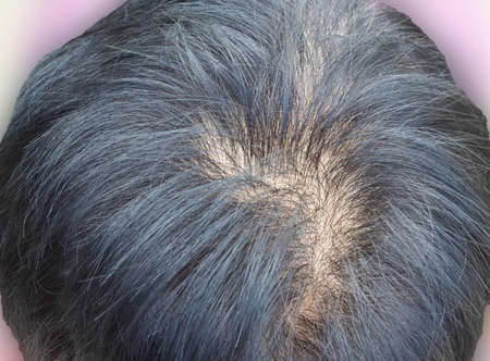 pelade: Human alopecia or hair loss problem and grizzly , shot from top view