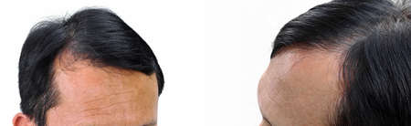 Human alopecia or hair loss problem and grizzly , shot from front view Stock Photo