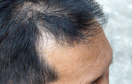 hair loss on blur  background Фото со стока