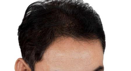 hair loss Фото со стока