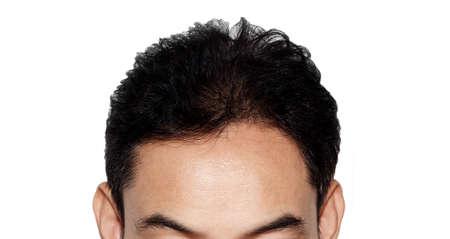 hair loss: hair loss Stock Photo
