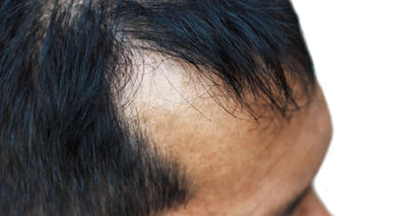 pelade: hair loss Stock Photo
