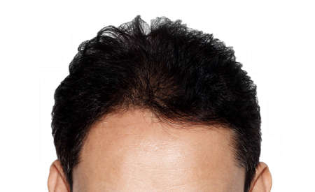 hair loss on white background