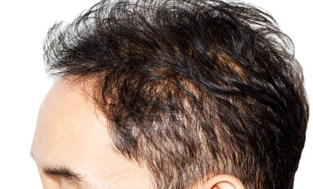thin man: hair loss on white background