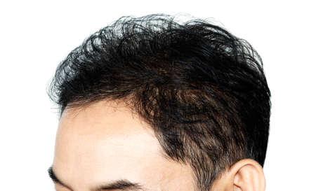 hair loss Reklamní fotografie - 44181638