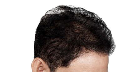 Perdida de cabello Foto de archivo - 46007529