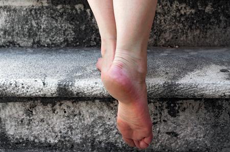 裸足の女性が石造りの階段を登る